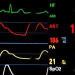 Etudes de mise à la terre et améliorées de VRC (variabilité de la fréquence cardiaque)