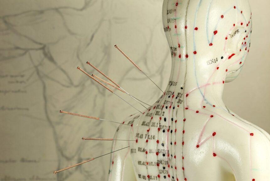 Top 3 des avantages de l'acupuncture